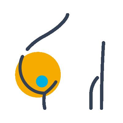 乳腺纖維瘤